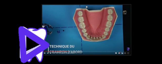 Odontocast vidéos pour l'odontologie